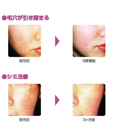 科 桑園 皮膚